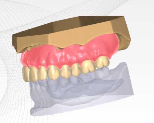 Full Denture Modul Einzelbogenprothesen