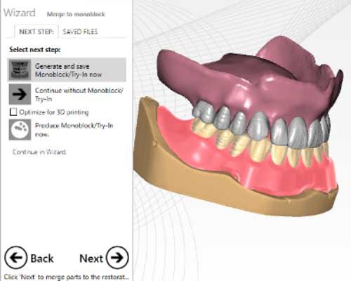 Full Denture Modul Verbesserungen