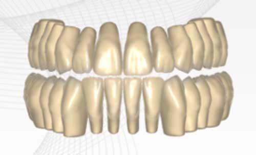 Neue Zahnbibliotheken
