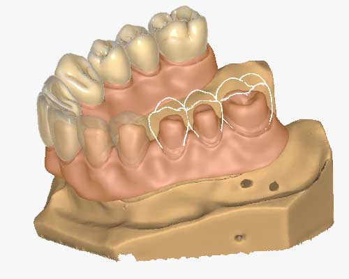 Zfx™ Dental CAD Kronenbrücken