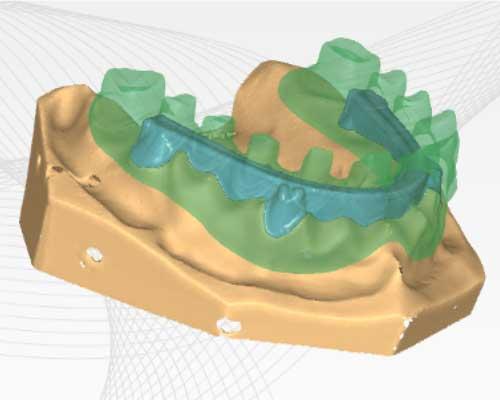Zfx™ Dental CAD Unterkonstruktionen