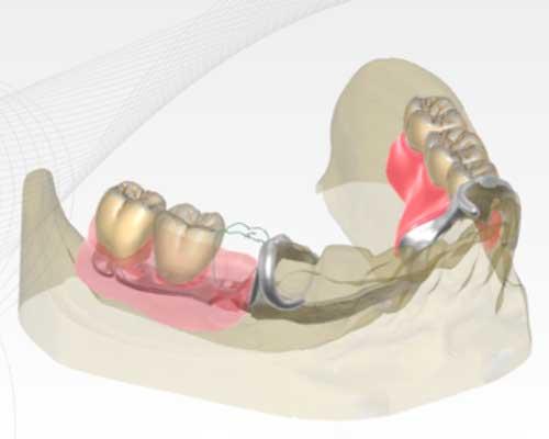 Zfx™ Partial CAD Deckprothesen